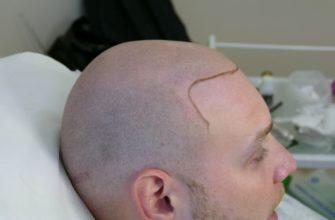 alopeciya u muzhchin oblysenie kak spravitsya s problemoj