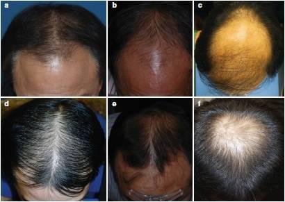 androgennaya muzhskaya i zhenskaya alopeciya simptomy razlichiya metody lecheniya