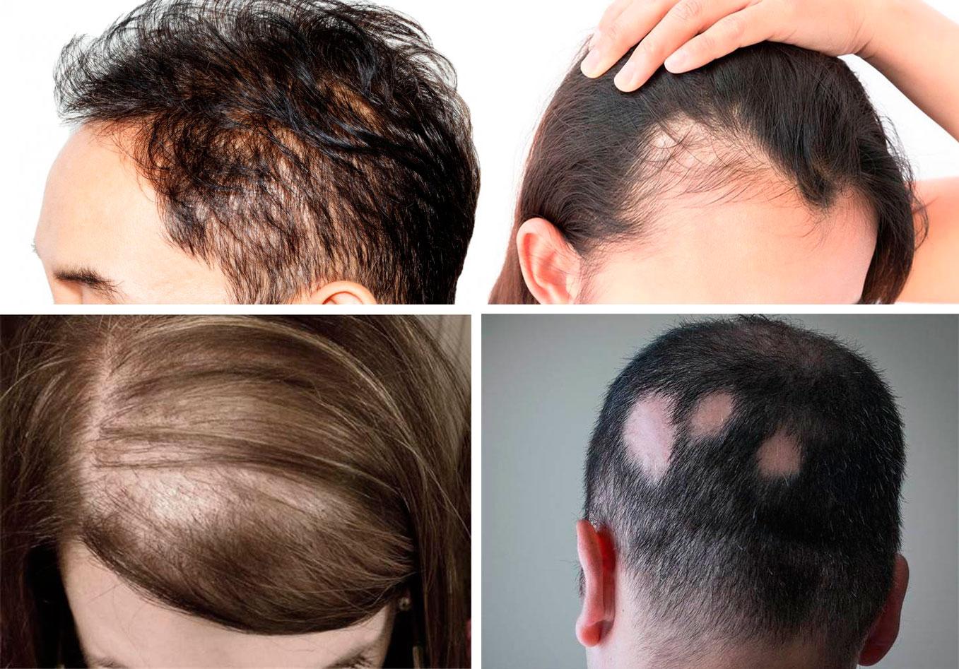 chto takoe alopeciya