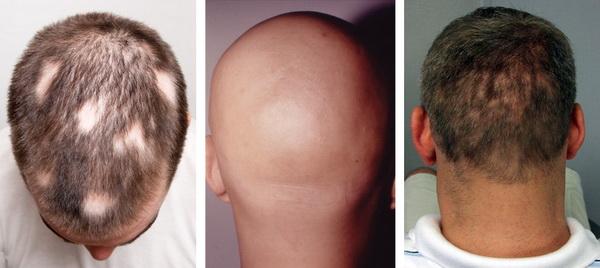 samye rasprostranennye prichiny alopecii u muzhchin