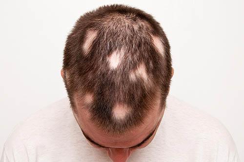 vse pro gnezdovuju alopeciju